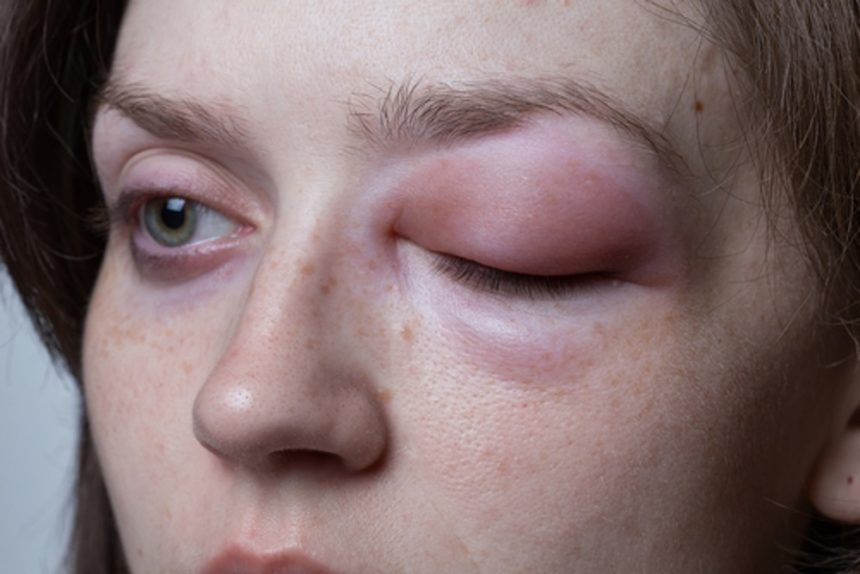 woman with swollen eye