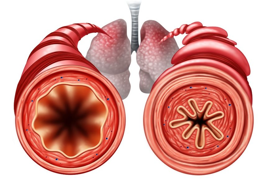 Asthma diagram, lungs