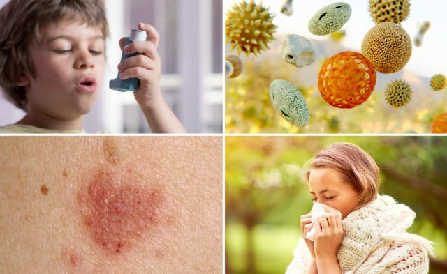 Atopic disorders custom image, allergies, asthma