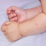 baby with dermatitis
