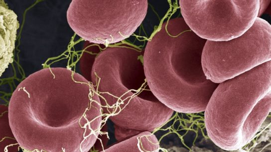 close up of blood clot in the blood stream