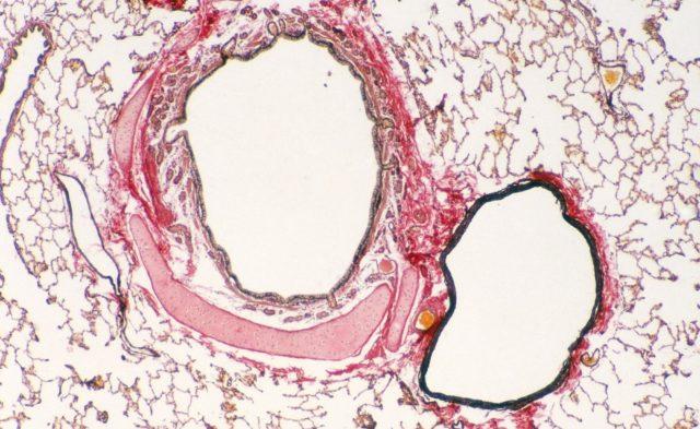 Bronchus, Pulmonary Artery