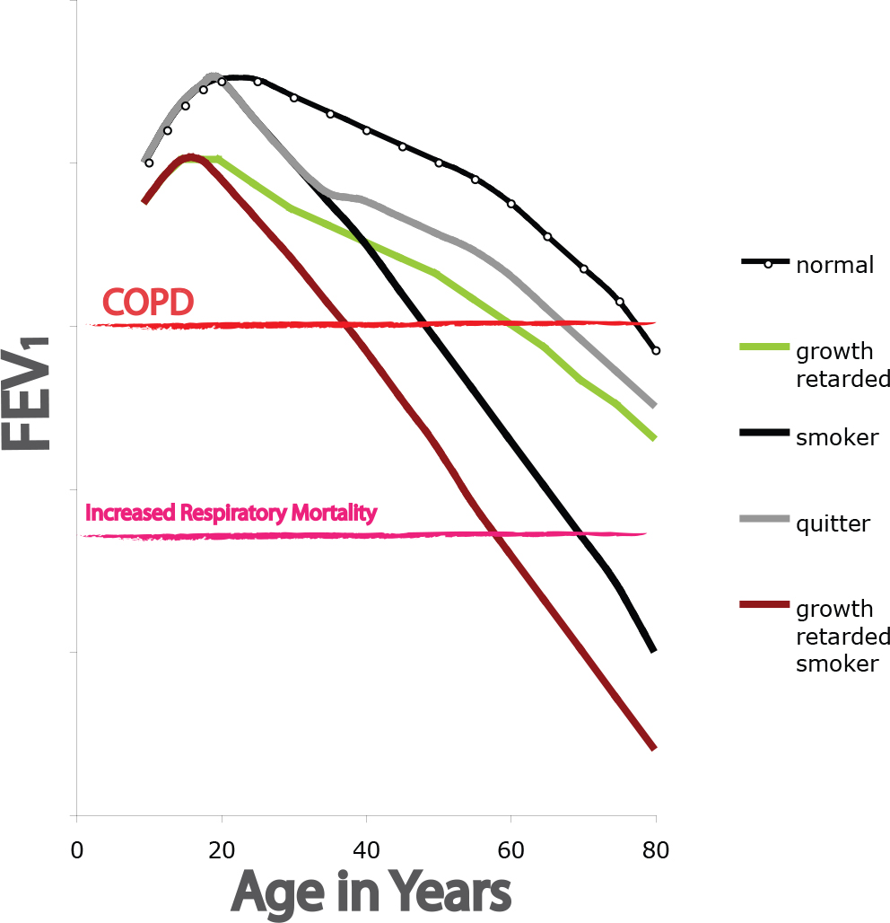 COPD: Pathogenesis, Epidemiology, and the Role of Cigarette