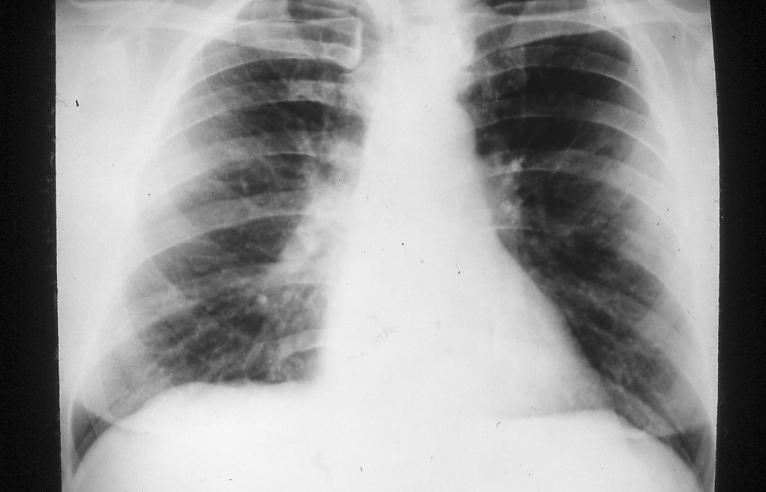 Asbestos Related Pulmonary Disorders Pulmonology Advisor