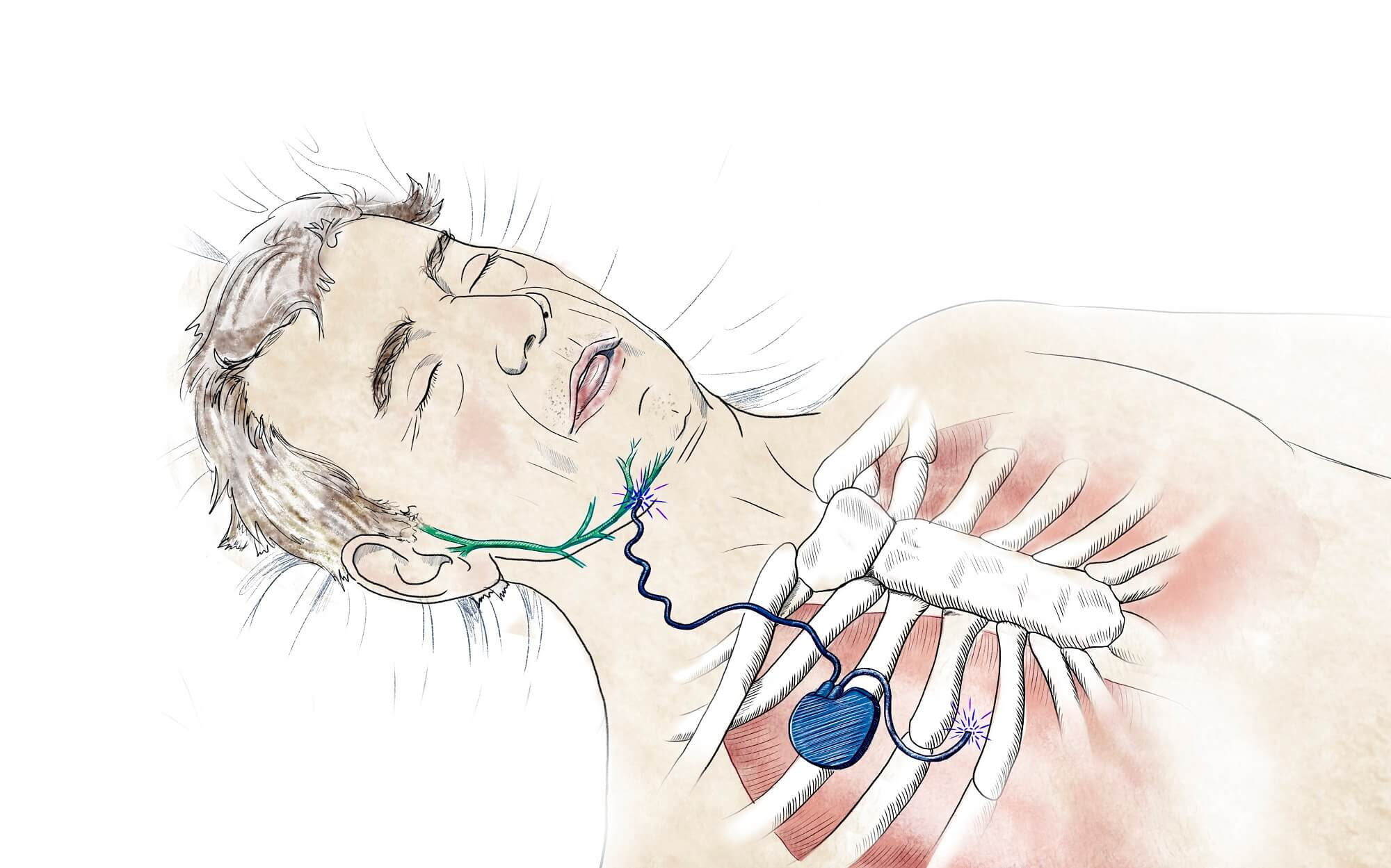 Cape Medical Supply : About : Obstructive Sleep Apnea (OSA)