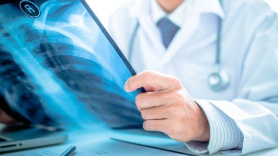 ARDS diagnosis xray