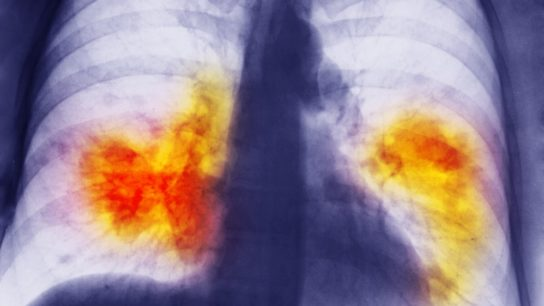 chest xray showing lung cancer
