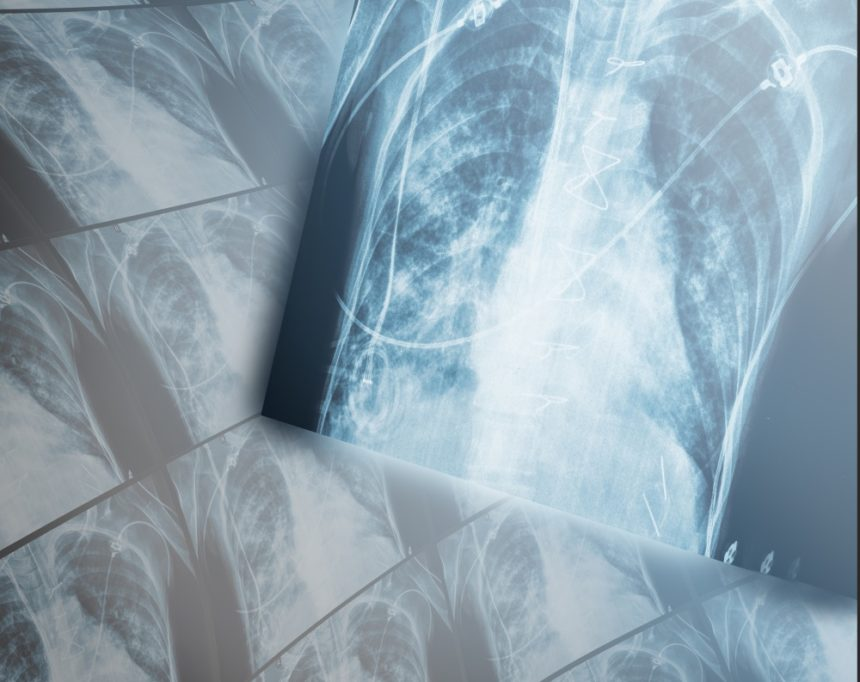 chronic obstructive pulmonary disease x ray