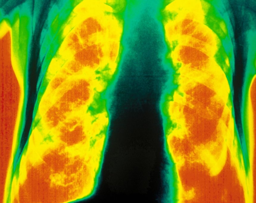 COPD X Ray