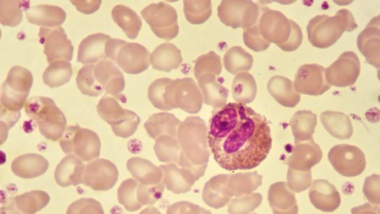 Eosinophil cell