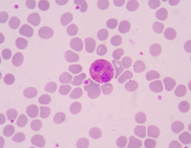 The presence of eosinophils in these latter organs.