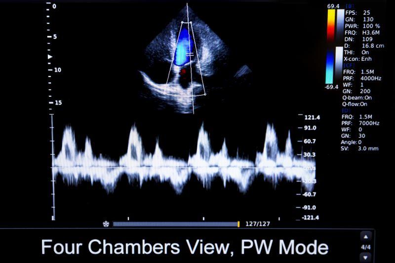 image of human heart ultrasound monitor