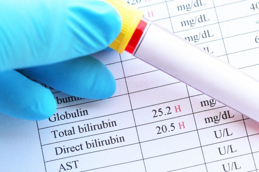 High Bilirubin Blood Test
