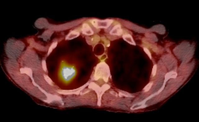 Lung Cancer, CT and PET Scans