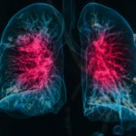 Lungs Chest 3D Image