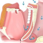 OSA obstructive sleep apnea illustration