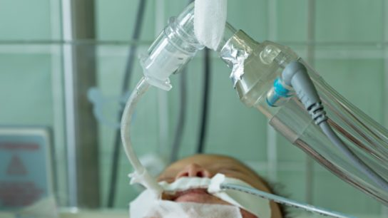Infant on mechanical ventilator in hospital