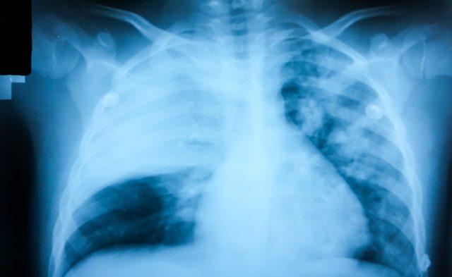 Pneumonia x-ray radiograph chest x-ray