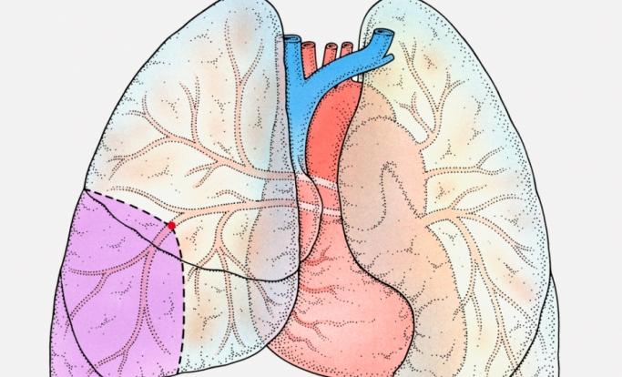 Pulmonary Embolism Recurrence Sleep Apnea