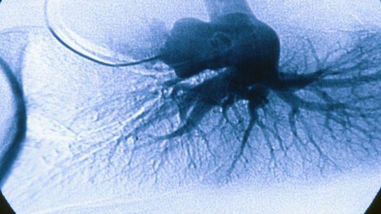 Pulm Hypertension Angiograph