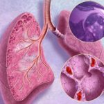 Pulmonary Sarcoidosis