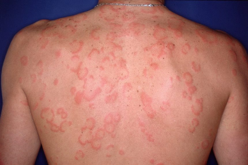 Urticaria hives on back