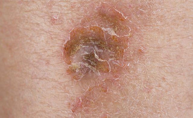 Uticaria, hives