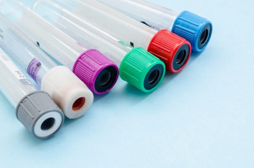 blood test tubes, vials