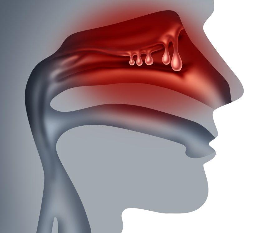 nasal polyps illustration