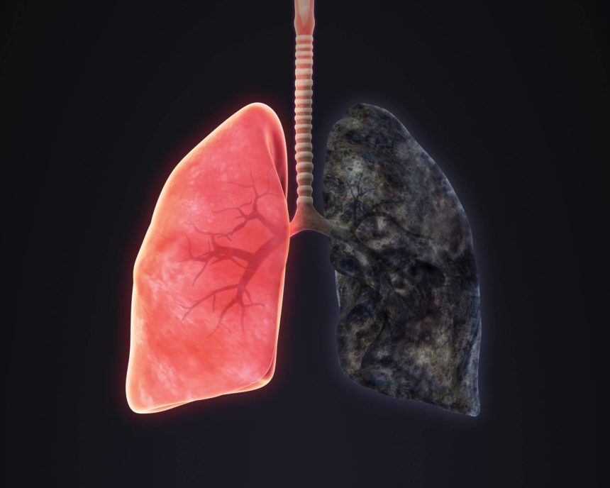 smokers lung