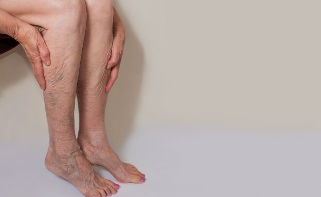 Female with varicose veins