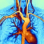chest.angiogram_G_758303601_cropped