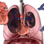 pulmonary hypertension , pah, pulmonary arterial hypertension