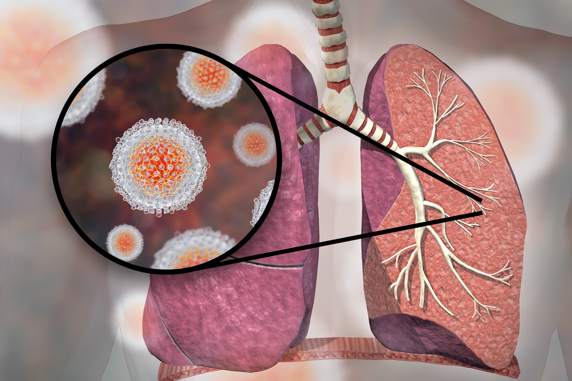 Lung and Heart Transplants From HCV-Infected Donors: Expert