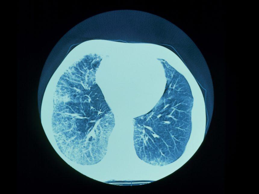 interstitial pulmonary fibrosis