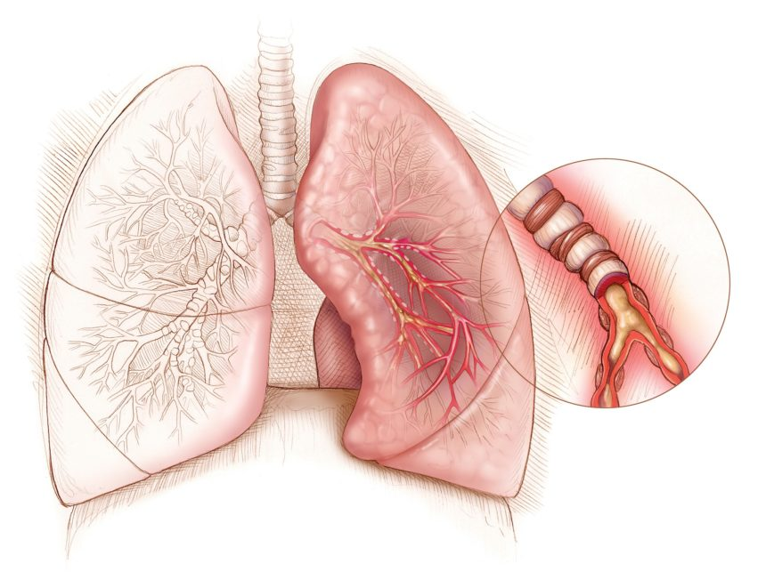 asthma, lungs