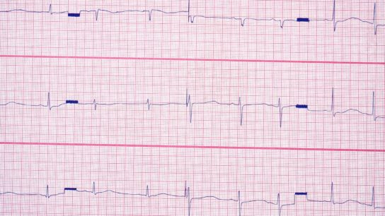 ECG qt syndrome