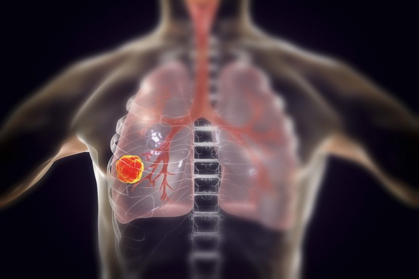 lung cancer chest illustration
