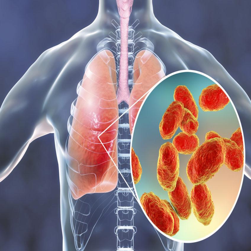 pneumonia computer illustration