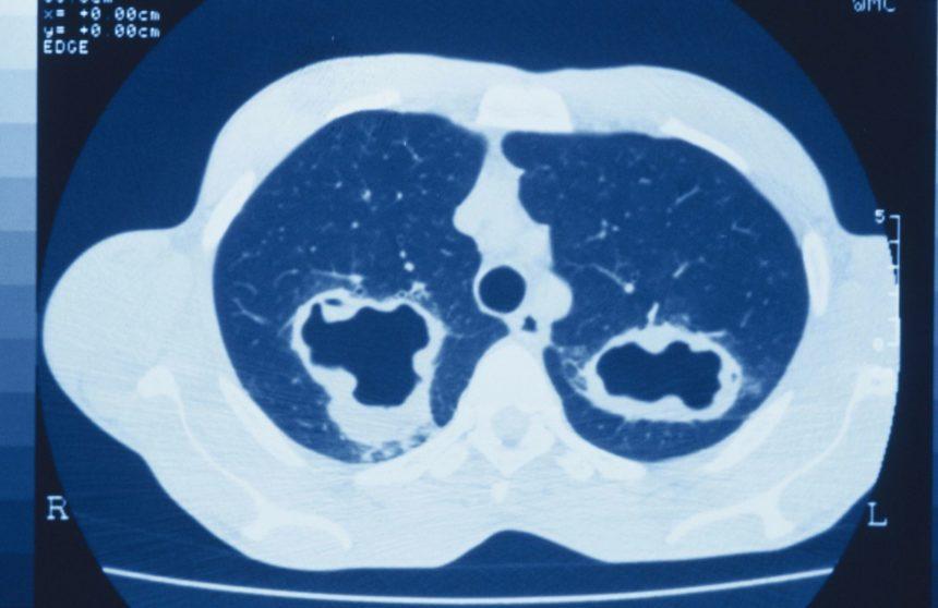 Eosinophilic Granulomatosis Polyangiitis scan
