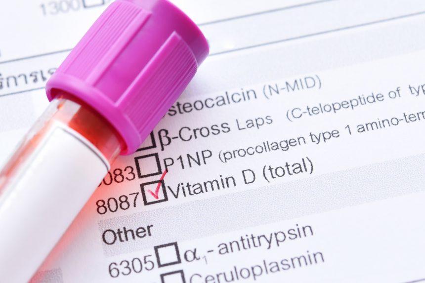 vitamin d blood test