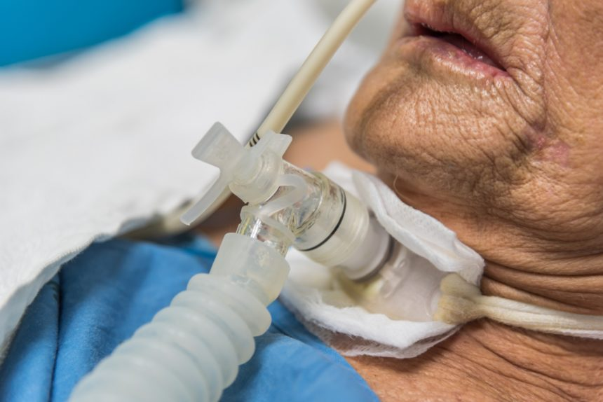 patient with tracheostomy and ventilator