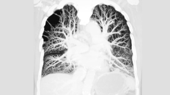 pulmonary embolism ct scan lungs