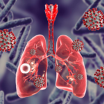 COVID-19 Tuberculosis Lungs