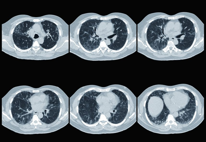 Interstitial lung disease, CT scan