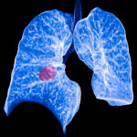 The NSCLC treatment pipeline includes additional targeted therapies, immunotherapies, and chemothera