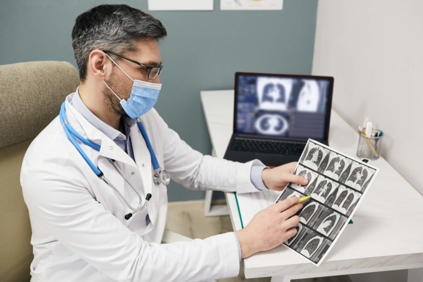 Doctor looking at lung scans.